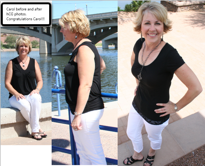 hcg drops before and after pictures. Before and After hCG – Carol